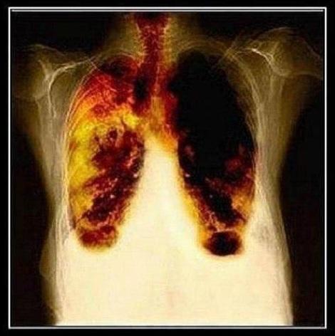 На какой недели беременности нужно бросить курить